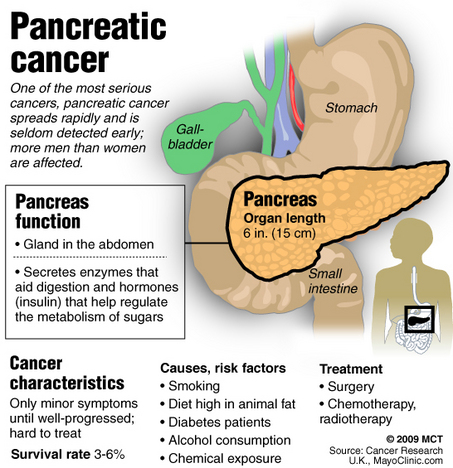 Pancreatic cancer explainer